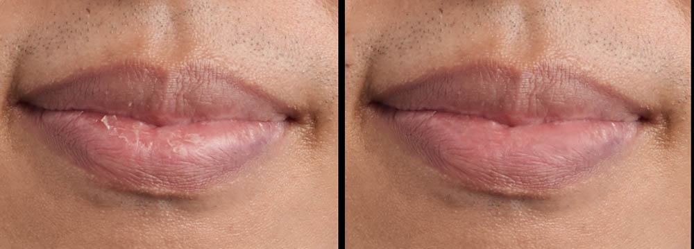 retouch chapped lips